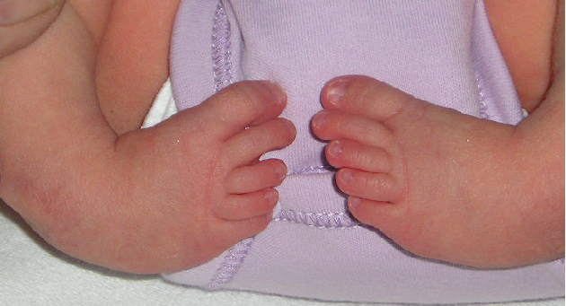 Understanding Talipes – Club Foot