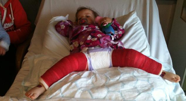 Caitlin Eaton's Hip Dysplasia Story